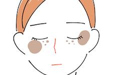 大斑型日光黒子(老人性色素斑)