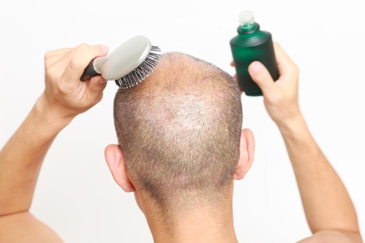 育毛 成分 効果