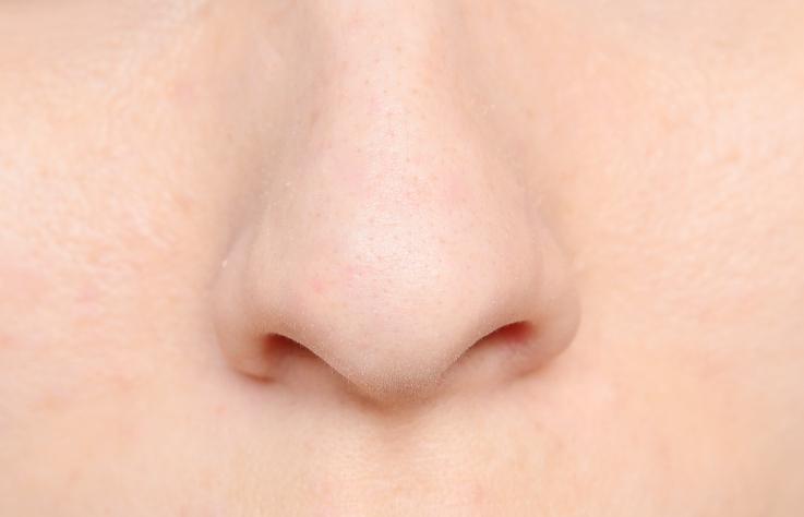 女性 鼻 毛穴