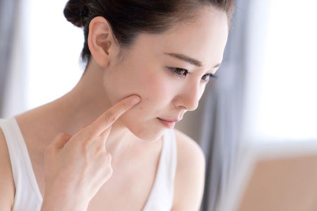脂性肌とニキビの関係
