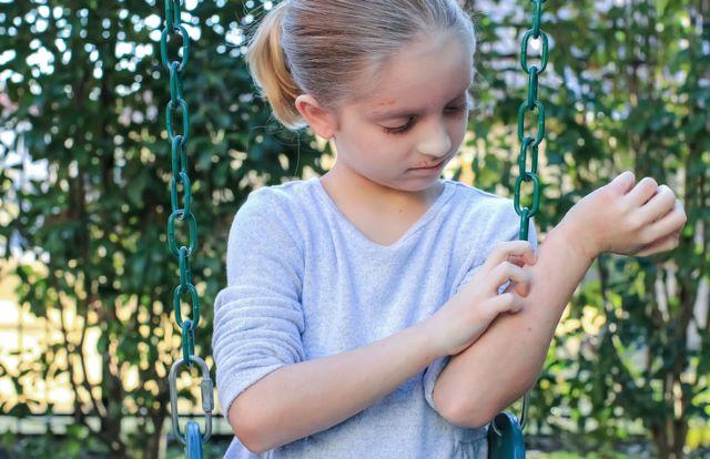 アトピーになりやすいかは手のひらを見ればわかる?