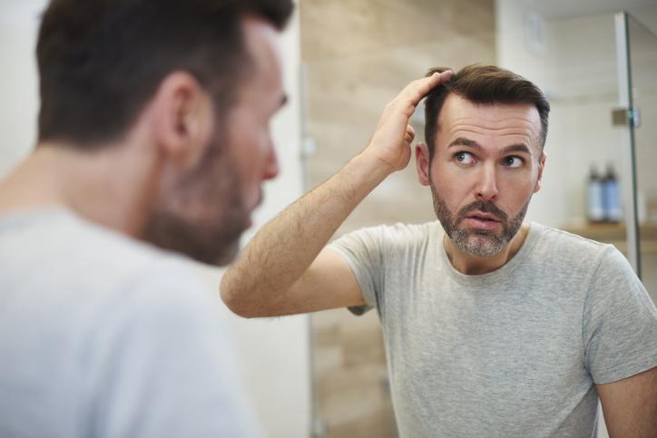 男性におすすめの育毛剤